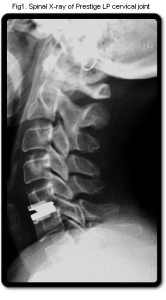 CERVICAL DISC REPLACEMENT FIGURE ONE