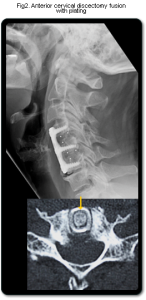 CERVICAL DISCECTOMY FIGURE TWO